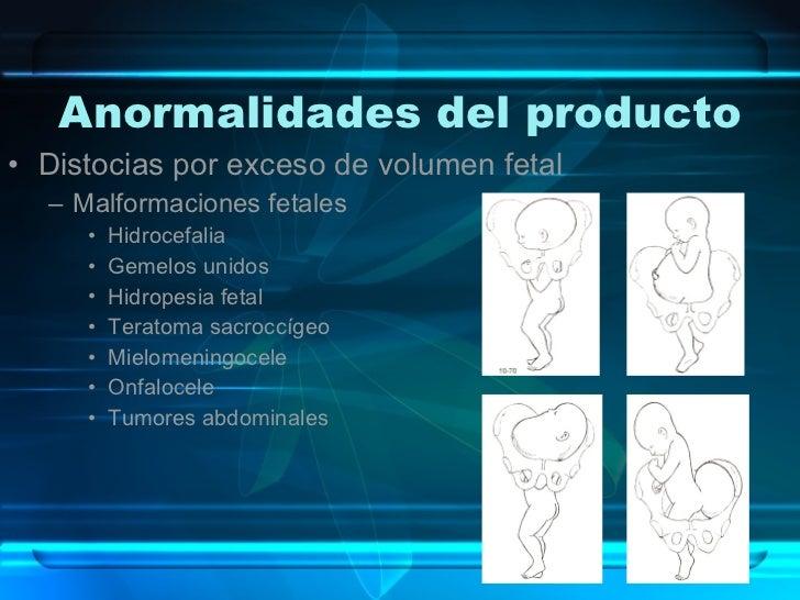 Anormalidades del producto <ul><li>Distocias por exceso de volumen fetal </li></ul><ul><ul><li>Malformaciones fetales </li...