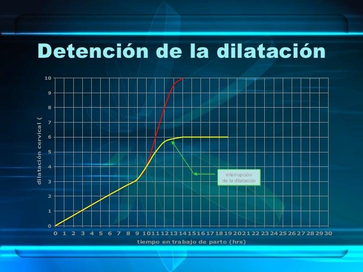 Detención de la dilatación interrupción de la dilatación .