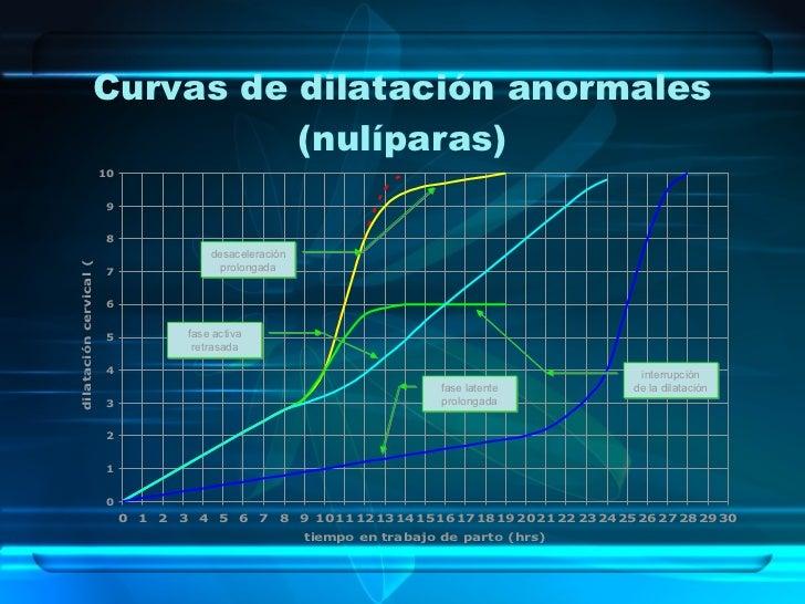 Curvas de dilatación anormales (nulíparas) fase activa retrasada fase latente prolongada interrupción de la dilatación des...