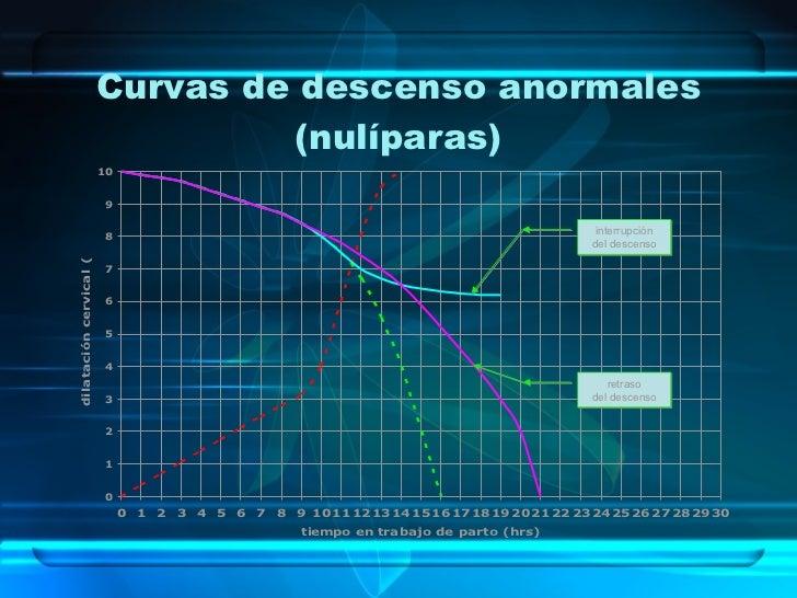 Curvas de descenso anormales (nulíparas) interrupción del descenso retraso del descenso .
