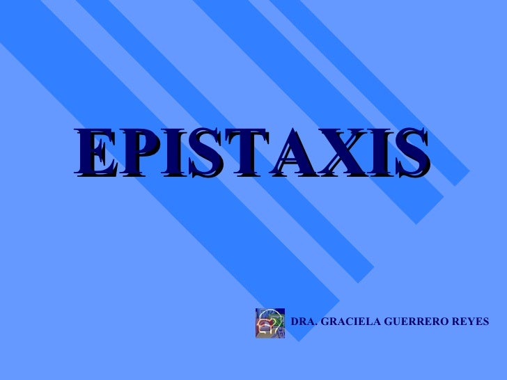 EPISTAXIS DRA. GRACIELA GUERRERO REYES