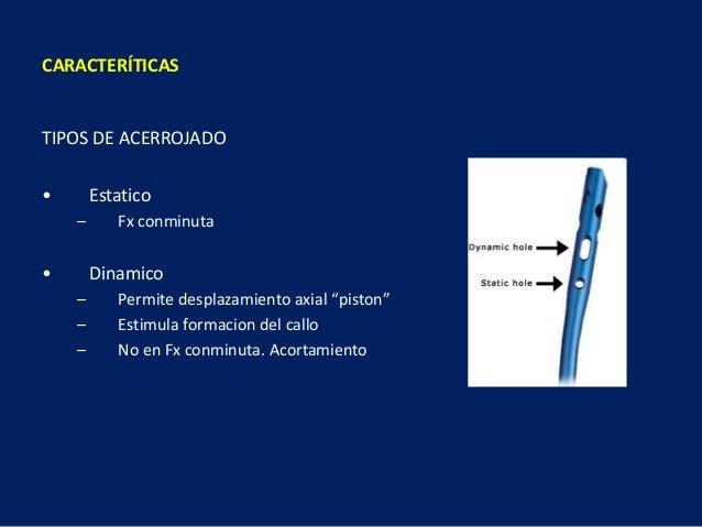 """TIPOS DE ACERROJADO • Estatico – Fx conminuta • Dinamico – Permite desplazamiento axial """"piston"""" – Estimula formacion del ..."""