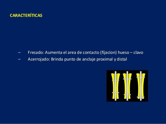 – Fresado: Aumenta el area de contacto (fijacion) hueso – clavo – Acerrojado: Brinda punto de anclaje proximal y distal CA...