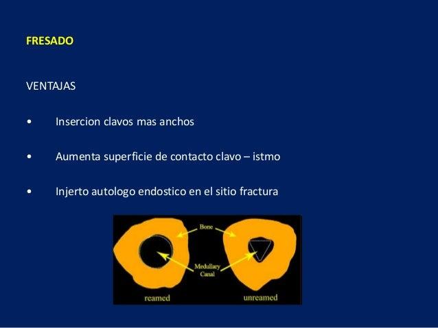 VENTAJAS • Insercion clavos mas anchos • Aumenta superficie de contacto clavo – istmo • Injerto autologo endostico en el s...
