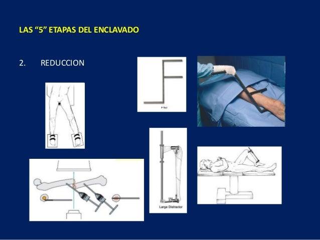 """2. REDUCCION LAS """"5"""" ETAPAS DEL ENCLAVADO"""