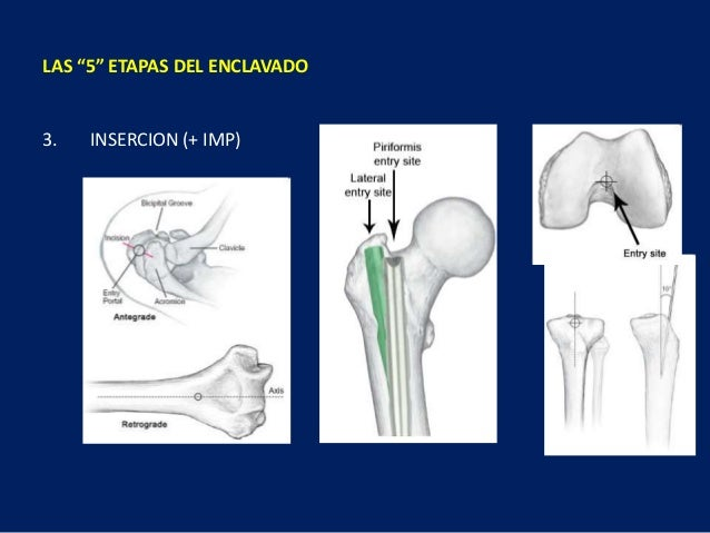 """LAS """"5"""" ETAPAS DEL ENCLAVADO 3. INSERCION (+ IMP)"""