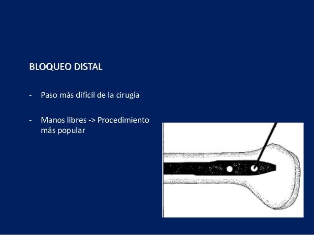 BLOQUEO DISTAL - Paso más difícil de la cirugía - Manos libres -> Procedimiento más popular