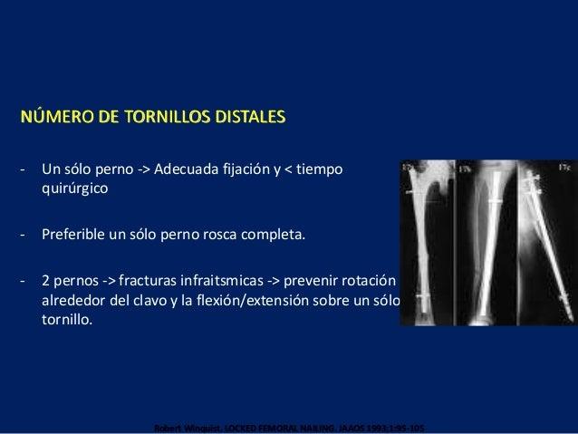 NÚMERO DE TORNILLOS DISTALES - Un sólo perno -> Adecuada fijación y < tiempo quirúrgico - Preferible un sólo perno rosca c...