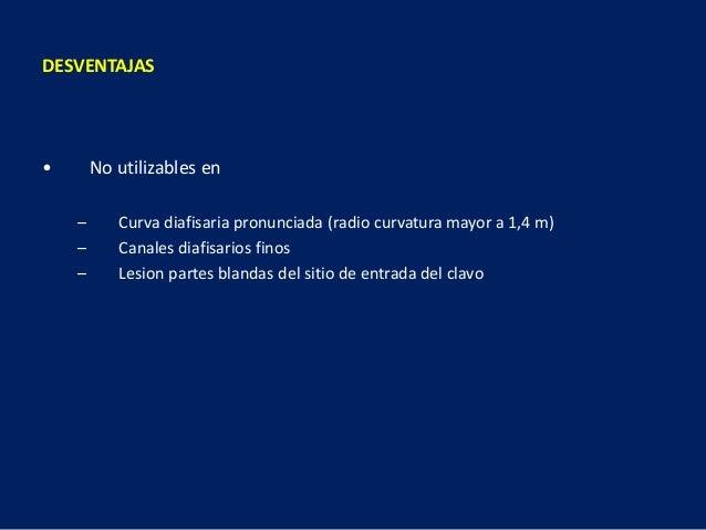 DESVENTAJAS • No utilizables en – Curva diafisaria pronunciada (radio curvatura mayor a 1,4 m) – Canales diafisarios finos...