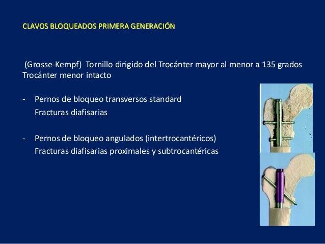 (Grosse-Kempf) Tornillo dirigido del Trocánter mayor al menor a 135 grados Trocánter menor intacto - Pernos de bloqueo tra...