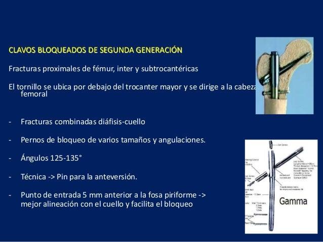 CLAVOS BLOQUEADOS DE SEGUNDA GENERACIÓN Fracturas proximales de fémur, inter y subtrocantéricas El tornillo se ubica por d...