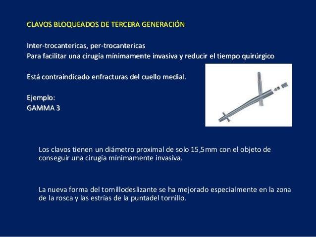 CLAVOS BLOQUEADOS DE TERCERA GENERACIÓN Inter-trocantericas, per-trocantericas Para facilitar una cirugía mínimamente inva...