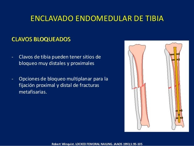 ENCLAVADO ENDOMEDULAR DE TIBIA Gerhard Kuntscher. INTRAMEDULLARY SURGICAL TCHNIQUE AND ITS PLACE IN ORTHOPAEDIC SURGERY: M...