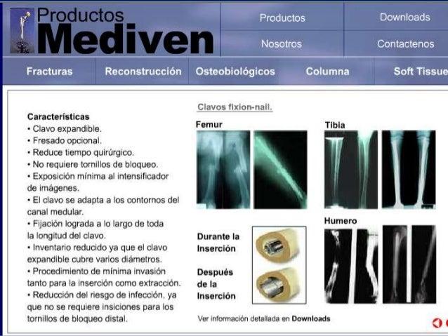 09 presentacion de clavos endomedulares nuevo
