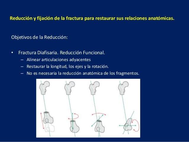 Reducción y fijación de la fractura para restaurar sus relaciones anatómicas. Objetivos de la Reducción: • Fractura Diafis...