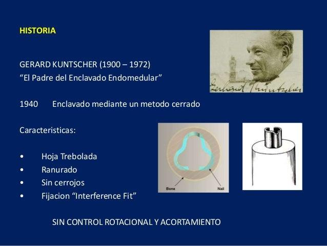 """HISTORIA GERARD KUNTSCHER (1900 – 1972) """"El Padre del Enclavado Endomedular"""" 1940 Enclavado mediante un metodo cerrado Car..."""
