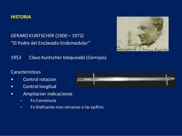 """GERARD KUNTSCHER (1900 – 1972) """"El Padre del Enclavado Endomedular"""" 1953 Clavo Kuntscher bloqueado (Cerrojos) Caracteristi..."""