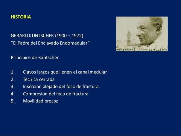 """GERARD KUNTSCHER (1900 – 1972) """"El Padre del Enclavado Endomedular"""" Principios de Kuntscher 1. Clavos largos que llenen el..."""