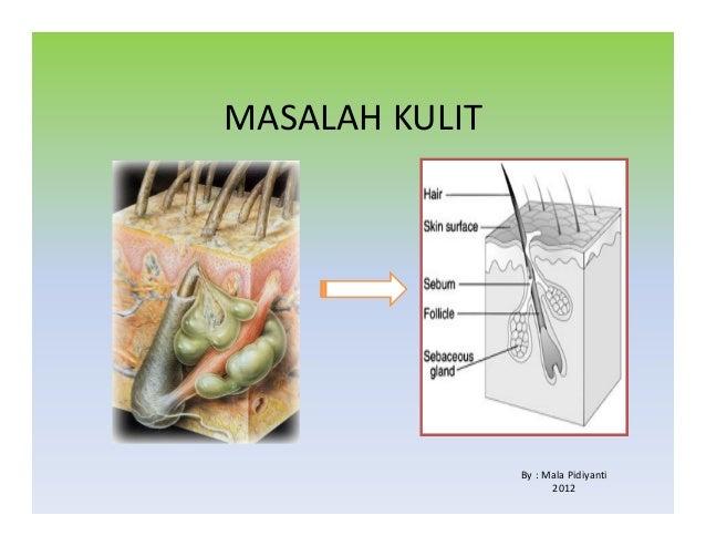 MASALAH KULIT By : Mala Pidiyanti 2012