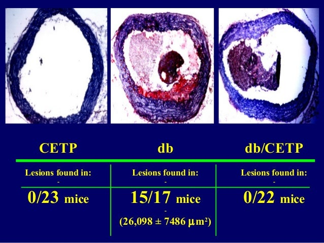 CETP Lesions found in: - 0/23 mice db Lesions found in: - 15/17 mice - (26,098 ± 7486 µm2 ) db/CETP Lesions found in: - 0/...