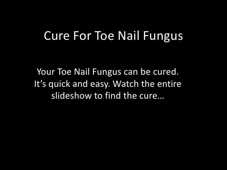 Cure For Toe Nail Fungus<br />Your Toe Nail Fungus can be cured. It's quick and easy. Watch the entire slideshow to find t...