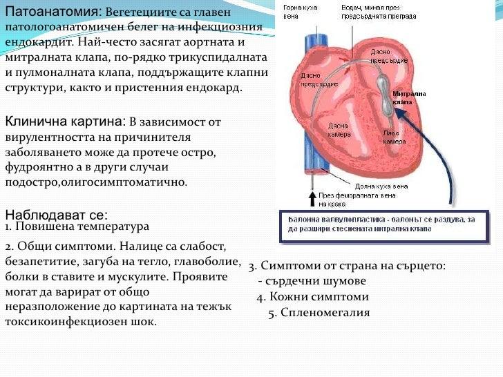 Патоанатомия: Вегетециите са главенпатологоанатомичен белег на инфекциознияендокардит. Най-често засягат аортната имитралн...