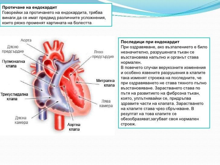 Протичане на ендокардитГоворейки за протичането на ендокардита, трябвавинаги да се имат предвид различните усложнения,коит...