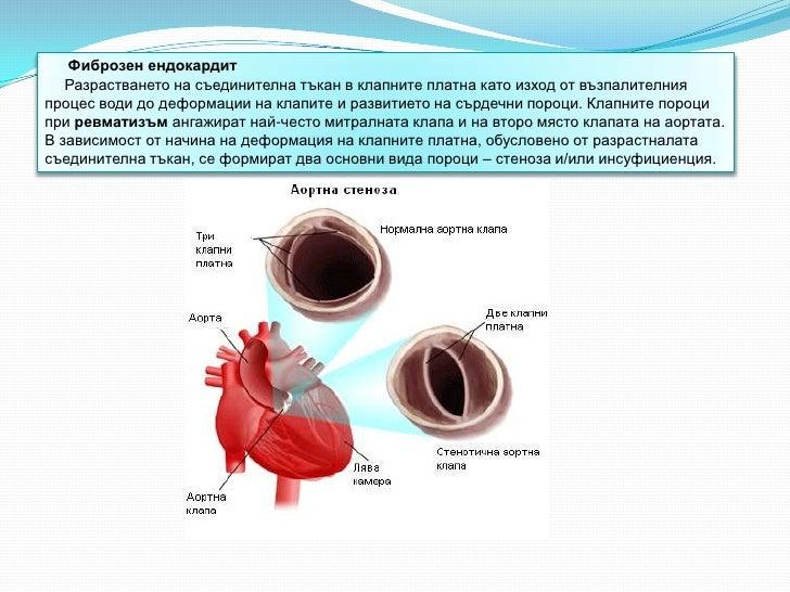 Фиброзен ендокардит   Разрастването на съединителна тъкан в клапните платна като изход от възпалителнияпроцес води до дефо...