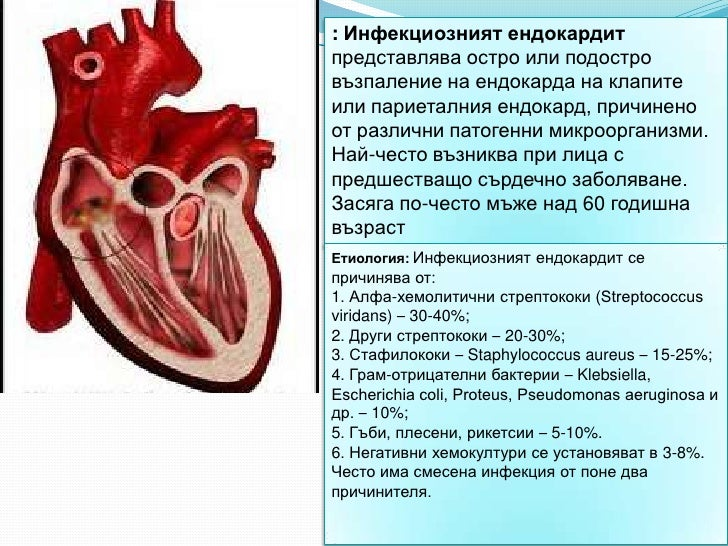 : Инфекциозният ендокардитпредставлява остро или подостровъзпаление на ендокарда на клапитеили париеталния ендокард, причи...