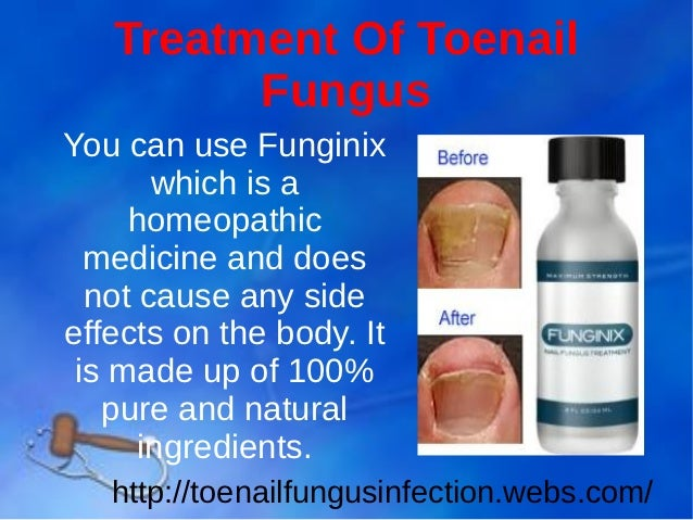 Toe Nail Fungus Medicine- Simple, Fast And Effective Treatment To Cur…