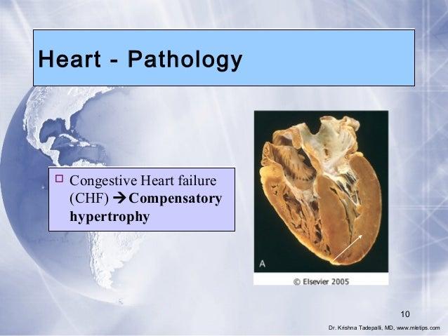 Heart - Pathology   Congestive Heart failure (CHF) Compensatory hypertrophy  10 Dr. Krishna Tadepalli, MD, www.mletips.c...