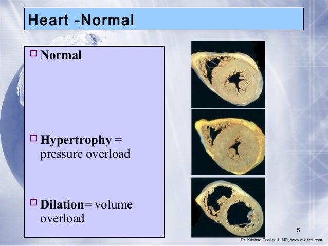 Heart -Normal  Normal   Hypertrophy = pressure overload   Dilation= volume overload 5 Dr. Krishna Tadepalli, MD, www.ml...