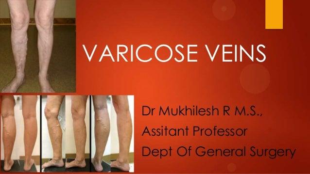 VARICOSE VEINS Dr Mukhilesh R M.S.,  Assitant Professor Dept Of General Surgery