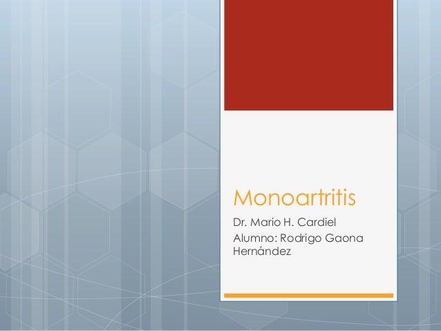 Monoartritis Dr. Mario H. Cardiel Alumno: Rodrigo Gaona Hernández