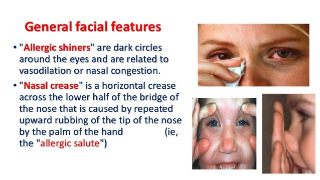 overuse of topical corticosteroids