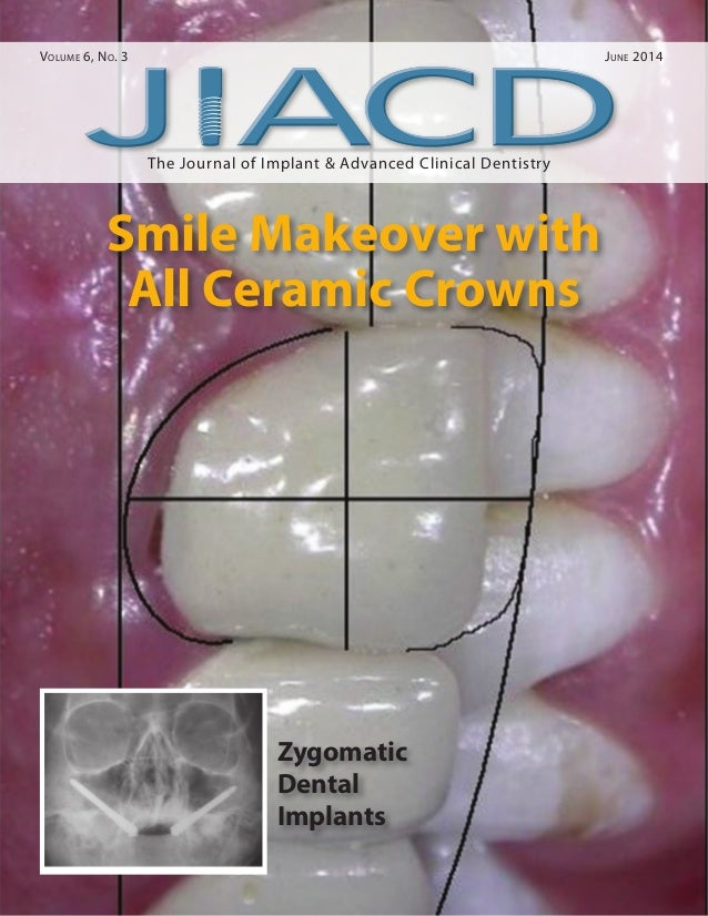 The Journal of Implant & Advanced Clinical Dentistry Volume 6, No. 3	 June 2014 Smile Makeover with All Ceramic Crowns Zyg...