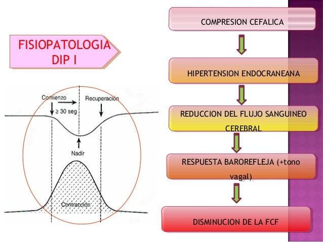 Baroreceptore s Nervio Vago Hipertensión sistémica