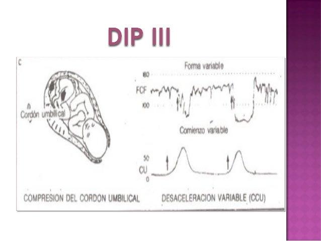 DESACELERACIONES MIXTAS DIP II DIP III Obst. Alicia Navarro Soto
