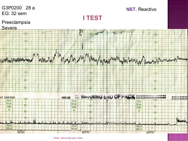 G2P0010 E: 35 años EG: 40 sem NST: PATOLOGICO INTERVALO: 8 horas PV , RN: OBITO FETAL H: 15:17 FCF: No audibles MF. En sal...