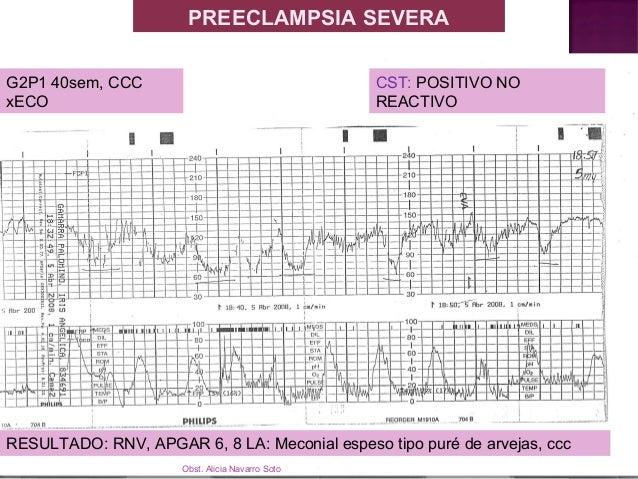 Taquicardia reactiva y dips II Registro cardiotocográfico de paciente en curso de parto, en el que se aprecian una serie d...