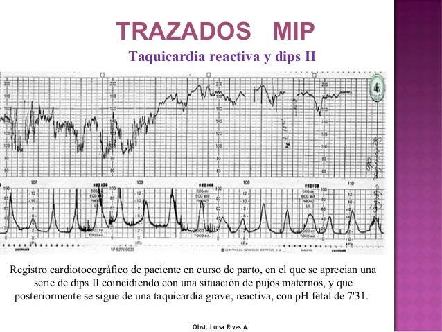 Registro cardiotocográfico correspondiente a una gestante en curso de parto, en la semana 40 que coincidiendo con un decúb...