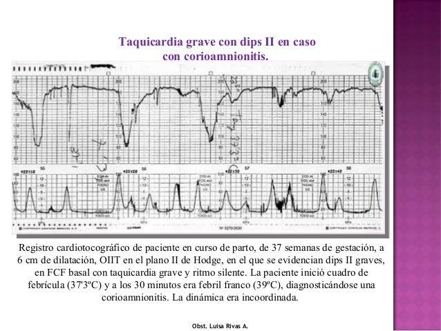 Sufrimiento fetal agudo Registro cardiotocográfico correspondiente a una gestante en curso de parto, en el que se aprecia ...