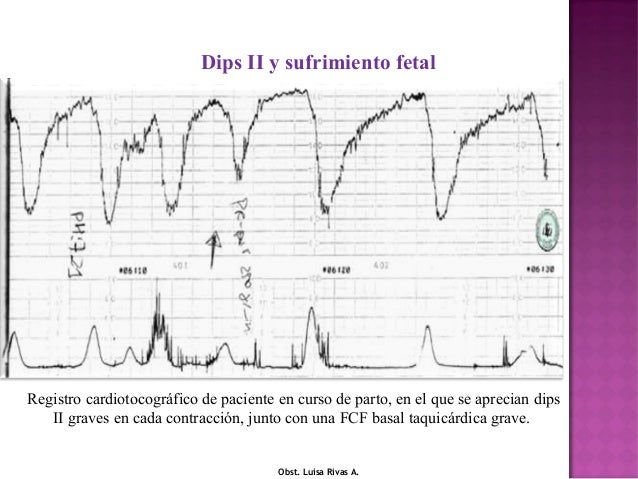 1.  fisiopatologia del dip[1]