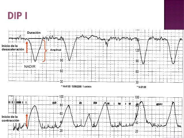  La compresión cefálica puede ocurrir por:  - Huesos pélvicos  - Partes blandas del canal  - Fondo uterino en los podá...