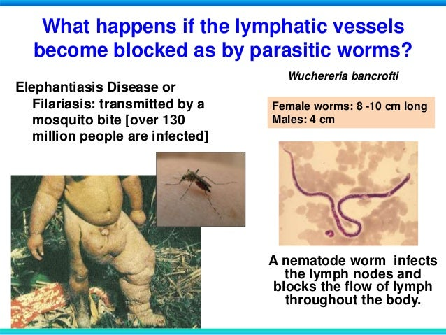 "lymphatic filariasis elephantiasis disease biology essay Filariasis is an infectious tropical disease caused by parasites lymphatic filariasis, commonly known as ""elephantiasis,"" occurs when filarial."