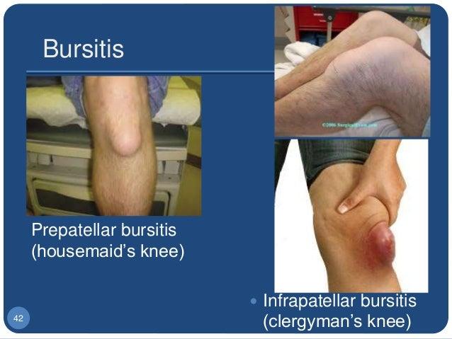 biomechanics of knee joint pdf
