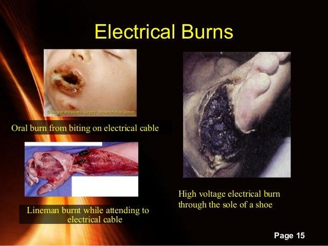 Electrical Vs Chemical Burn