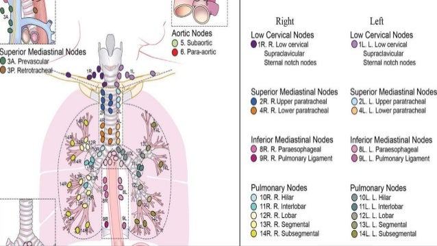 Radiological Anatomy Of Thoracic Lymph Nodes