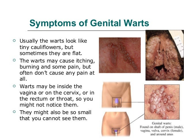 Vaginal diseases not caused by sex