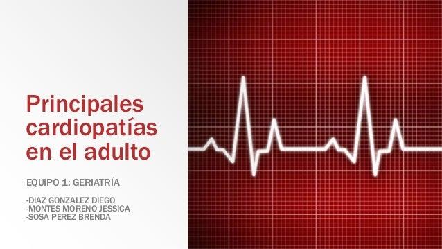 Principales cardiopatías en el adulto EQUIPO 1: GERIATRÍA -DIAZ GONZALEZ DIEGO -MONTES MORENO JESSICA -SOSA PEREZ BRENDA
